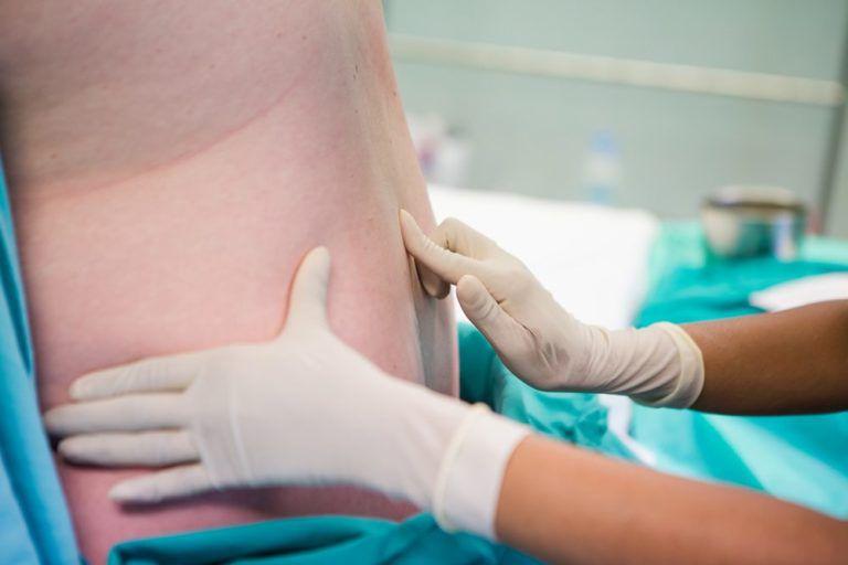 Cervical Epidural Injection